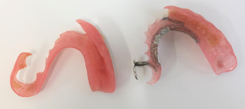 ノンクラスプ義歯11