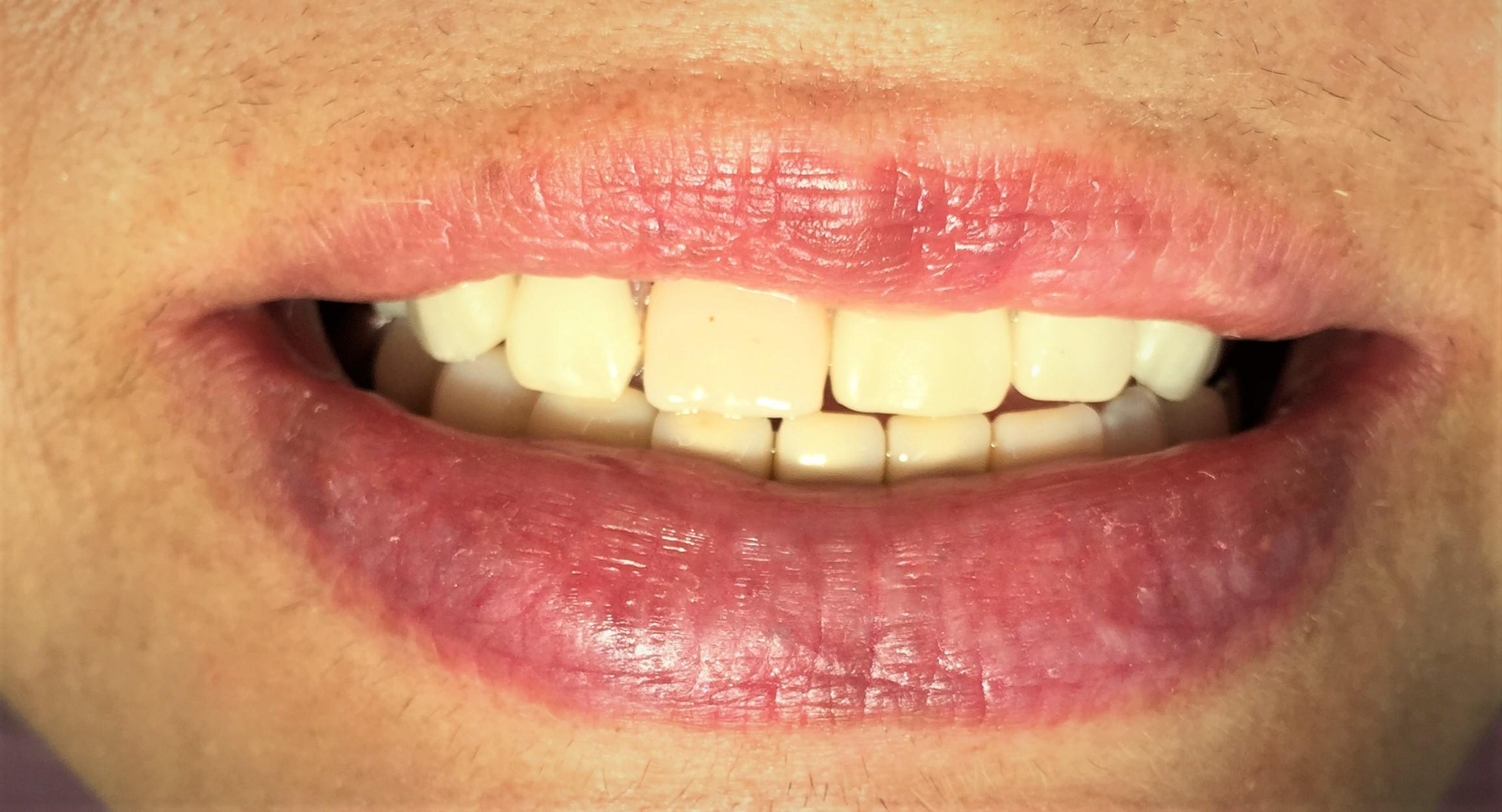 目立たない義歯