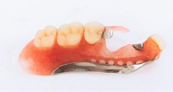 ノンクラスプ義歯2