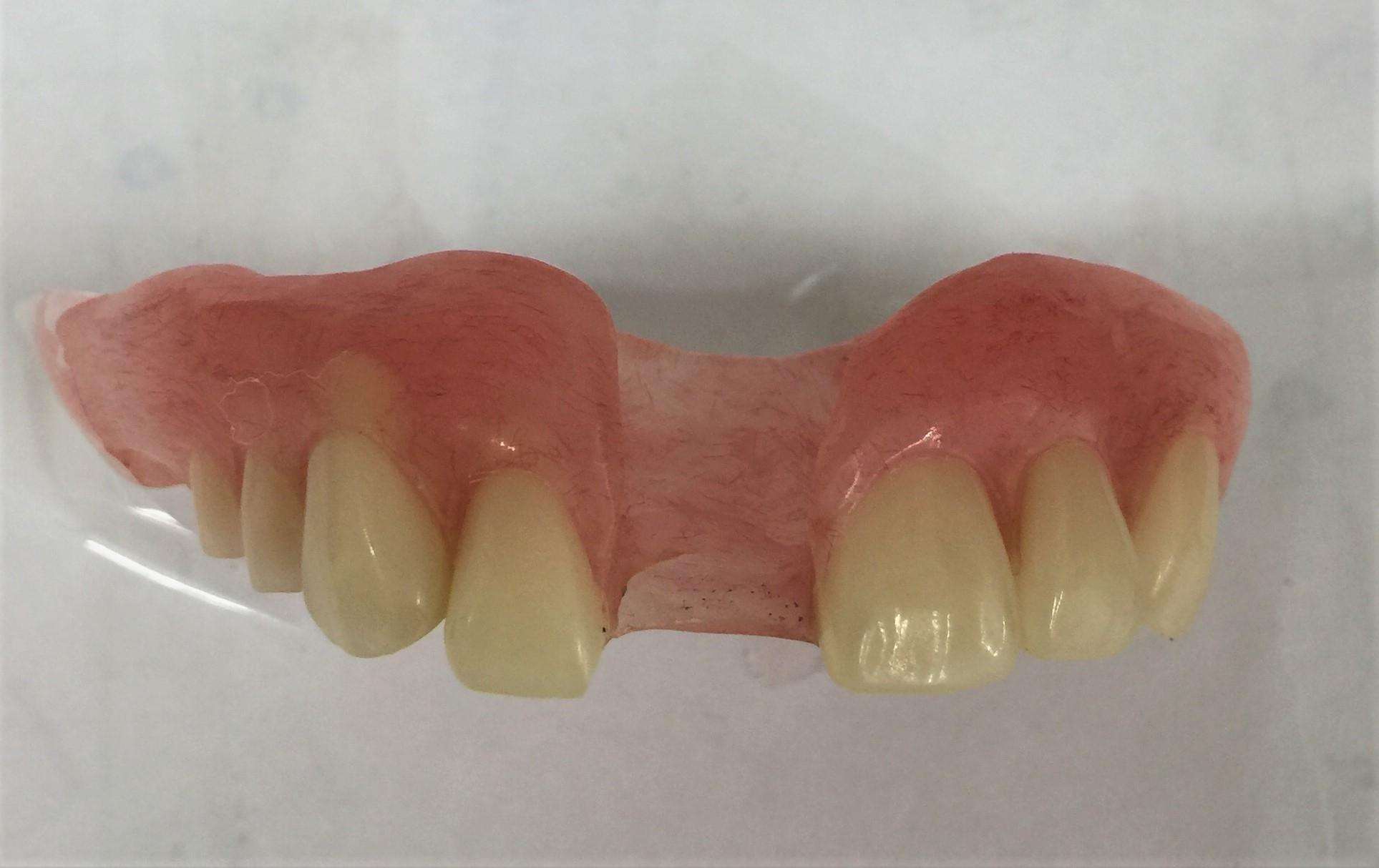 目立たない入れ歯4