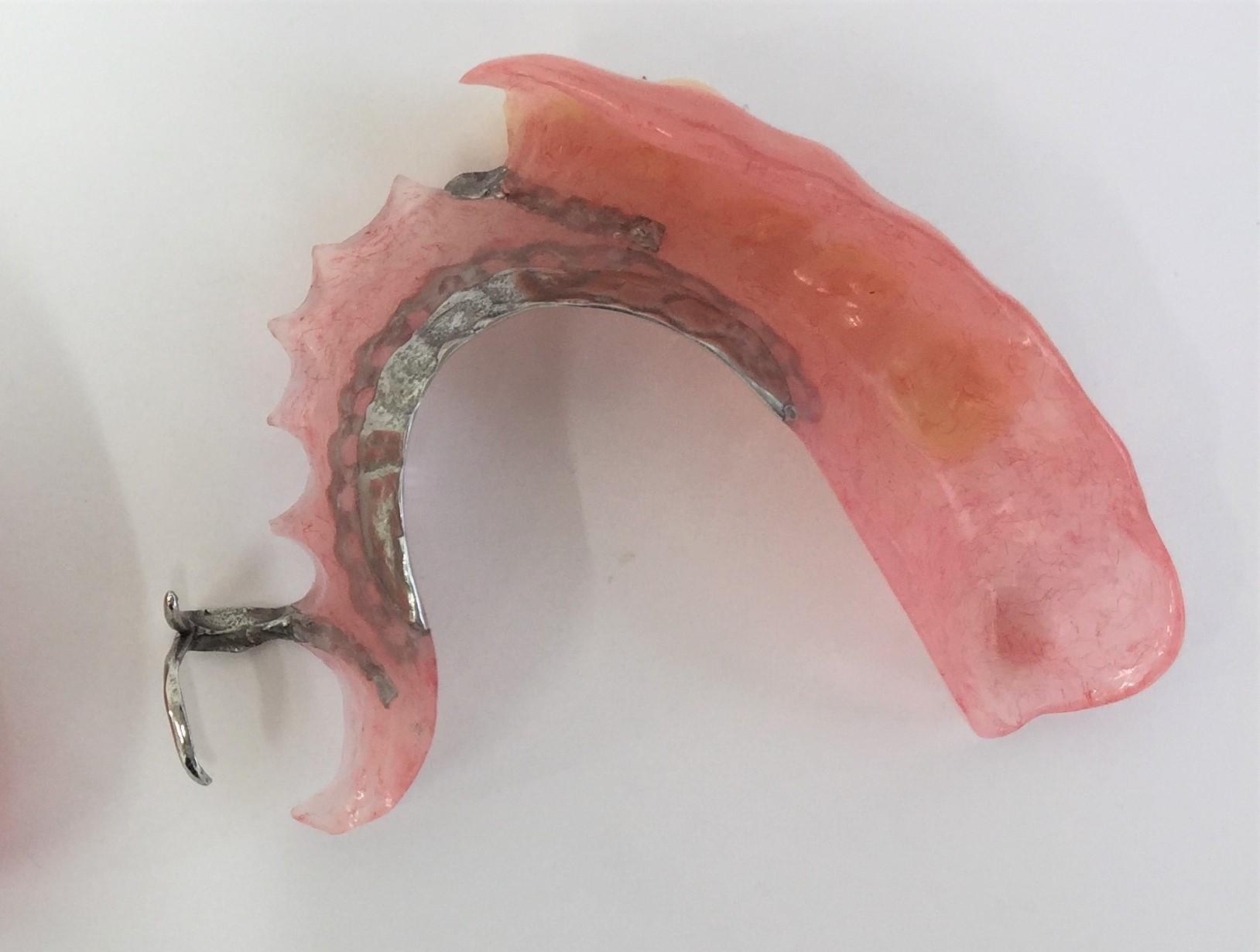 ノンクラスプ義歯8