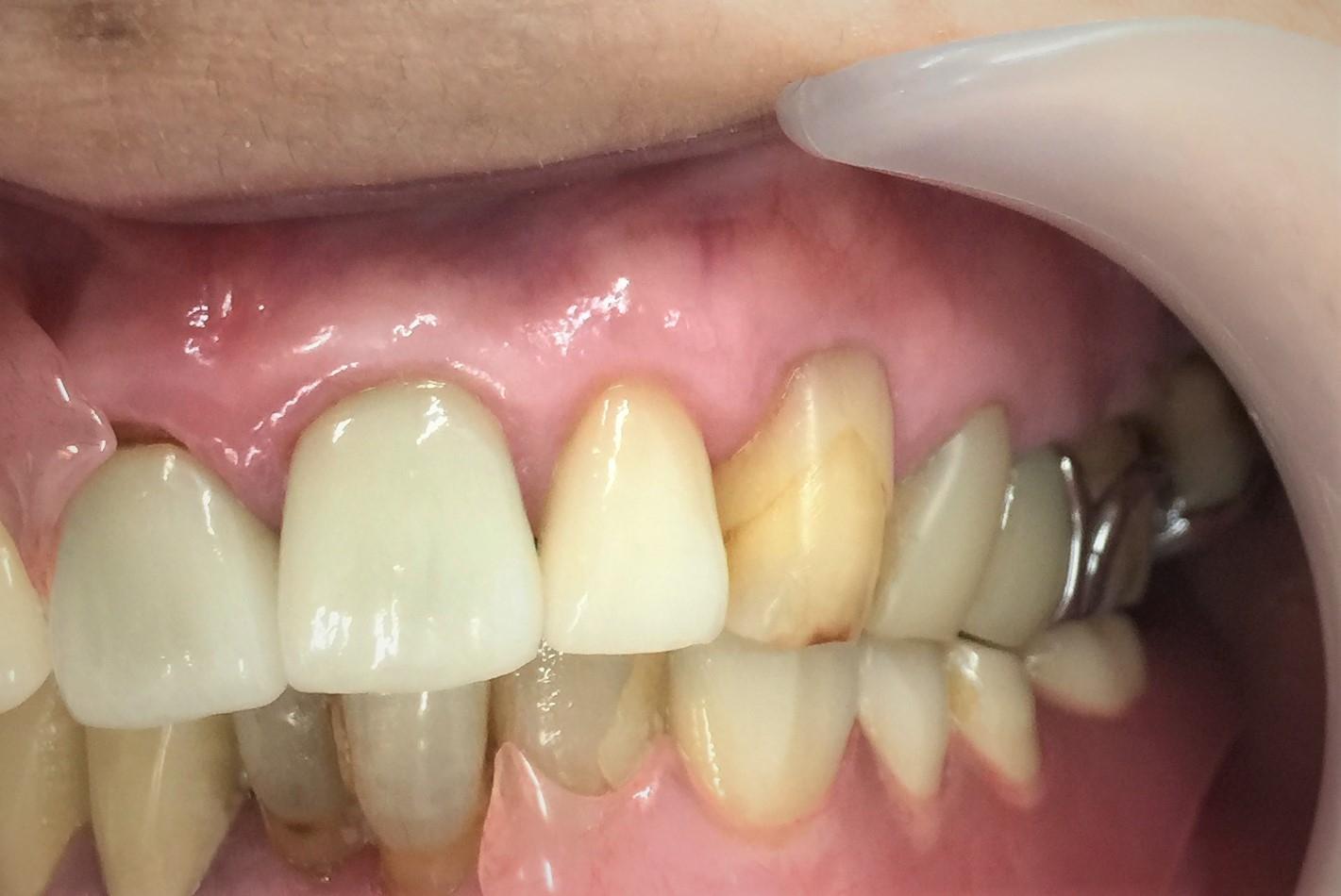 ノンクラスプ義歯12