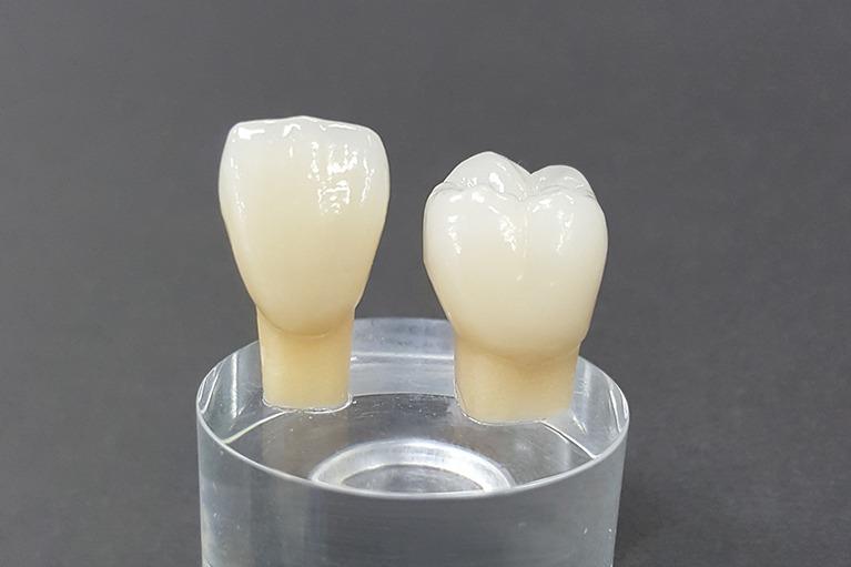 歯科医療で使われる金属素材について